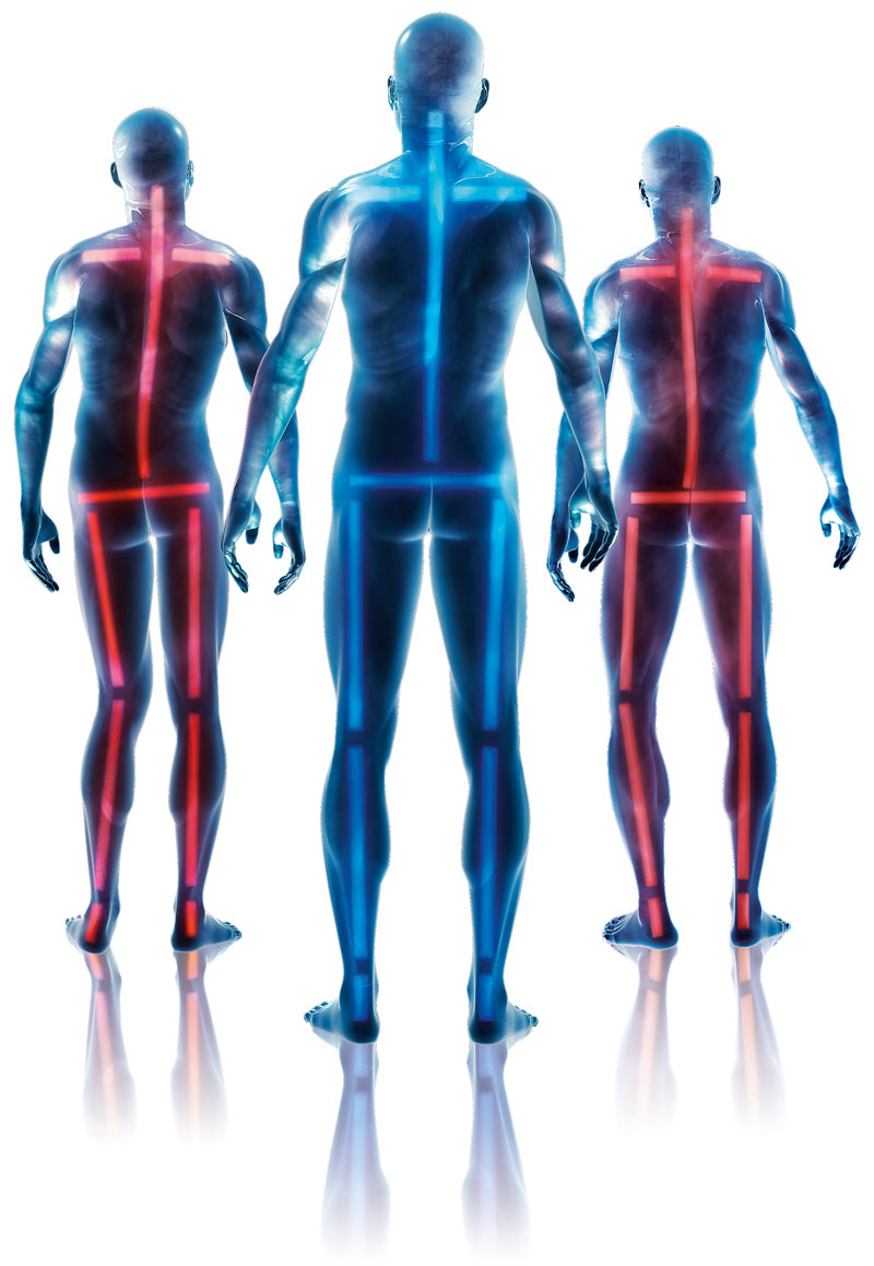 figures showing body alignment and misalignment